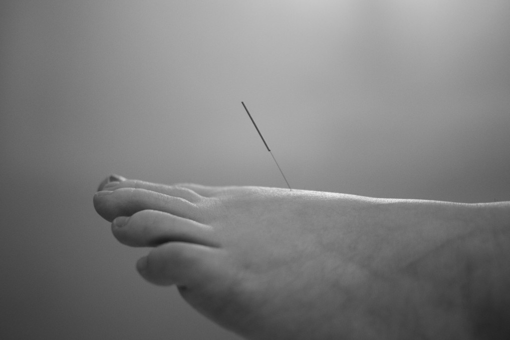 Who Can Benefit from Acupuncture