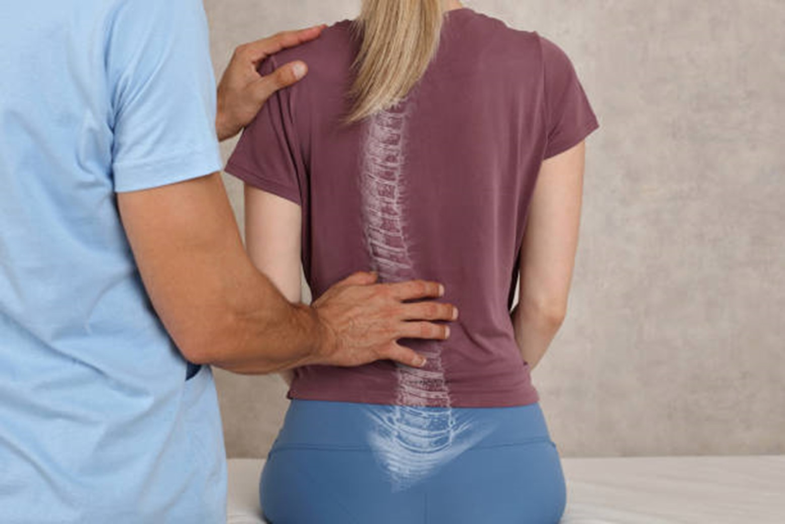 mississauga-chiropractor-for-better-posture